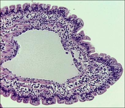 Histopathological appearance of duodenum showing central lacteal ballooning that represented up to 75% of width of the villous lamina propria on longitudinal section. H&E stain, ×100.