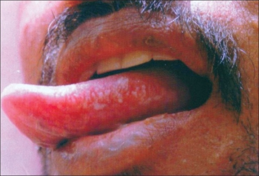 Clinical picture of oral hairy leukoplakia showing hype ...