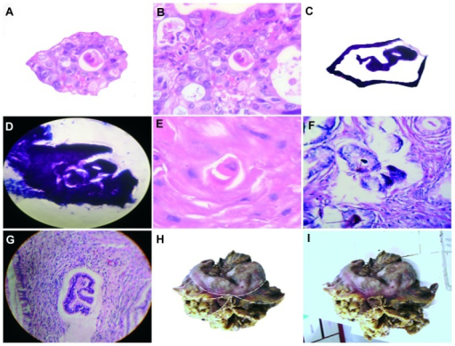 Crystals generate embryoid bodies in the interior of the hexagonal geometry. (A) Detachment subimage of (B) image of embryoid body self-assembly into a geometric triangular chiral hexagonal-like crystal complex in a case of colon adenocarcinoma with hematoxylin and eosin staining (20×). (C) Detachment subimage of (D) image of embryoid body into hexagonal-like crystal complex in a case of lung squamous cell carcinoma with hematoxylin and eosin staining (20×). (E,F) Embryoid body self-assembly in a case of prostate adenocarcinoma with hematoxylin and eosin staining (40×). (G) Well defined embryoid formation in a case of Grade 1 cervical intraepithelial neoplasia with hematoxylin and eosin staining (20×). (H and I) Macroscopic representation of an embryoid body assembled into a geometric hexagonal template platform in a case of gastric adenocarcinoma.