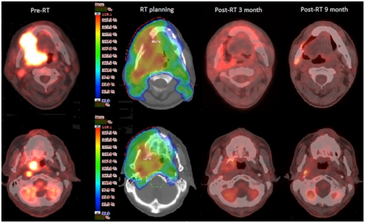 A 35-year-old male patient was diagnosed with right-sided lower gum cancer, stage cT4bN2bN0.The patient underwent curative-intent treatment with concurrent chemo-radiotherapy using simultaneous integrated boost intensity-modulated radiotherapy (SIB-IMRT) with dose-painting (dose escalation within a gross target volume). The images show the sequential changes in the main tumor (upper panel) as well as in the ipsilateral RPLN (lower panel). The patient had no evidence of recurrence after 51 months of follow-up.