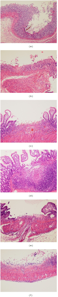 Microscopic findings in the rat small intestine. (a) and (b) Erosions induced by indomethacin showed focal villous necrosis and reduced epithelial height. (c) and (d) Ulcers induced by indomethacin showed deep excavation of mucosa and exposed submucosal layer. Marked inflammatory cell infiltration was noted in the submucosal space. (e) and (f) Transmural inflammatory infiltration was present beyond the ulcer formation (hematoxylin-eosin stain, ×40).
