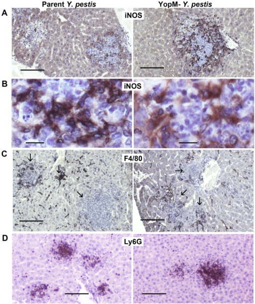 YopM did not affect the distributions of inflammatory cells.Liver sections from the mice of Figure 3 were stained for inducible nitric oxide synthase (iNOS; panels A and B), the KC/MO marker F4/80 (panels C), or the PMN marker Ly6G (panels D). Antigen detection used DAB staining (black or brown) in sections from livers infected by parent Y. pestis (left panels) and the ΔYopM-1 strain (right panels). The arrows in panels C point to inflammatory foci. The bars represent 100 µm (panels A, C, D) or 10 µm (panels B).