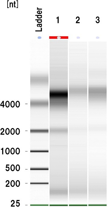 Effect of formalin fixation on RNA expression. Representative RNA agarose gel image showing a band of 2000 nt corresponding to 18S ribosomal RNA in lane 1. A faint band of 2000 nt is also seen in lanes 2 and 3. Lane 1, sample 2; lane 2, sample 1; lane 3, sample 8.