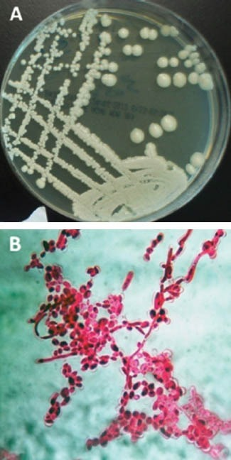 growth of candida albicans on sabouraud dextrose agar a open i