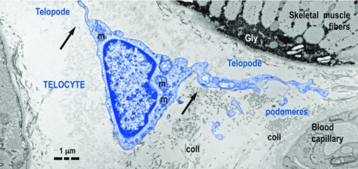 Telocyte (TC) in human skeletal muscle interstitium: two striated fibres and a blood capillary (transmission electron microscopy). Cellular body of TC (digitally coloured in blue) has a thin layer of cytoplasm with few mitochondria (m) around nucleus. Telopodes (Tps) have a narrow emergence (arrows) from cellular body. Tps have a sinuous trajectory, podomeres (extremely thin segments, below the resolving power of light microscopy) and podoms (dilated portions). coll: collagen fibres.