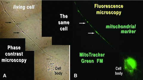 Mouse skeletal muscle in cell culture. The same cell was analysed by (A) phase contrast microscopy and (B) fluorescence microscopy after labelling the mitochondria of living cells with MitoTracker Green FM. Mitochondria are concentrated around the cell nucleus and within the podoms (arrows). Photographic reconstruction; original magnification: 1000×.