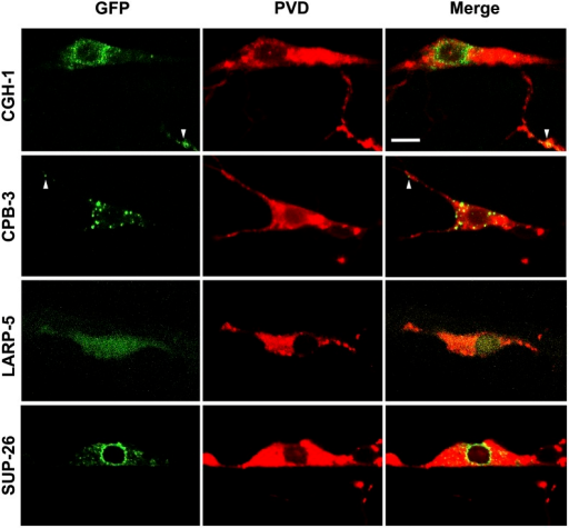 Cytoplasmic localization of CGH-1, CPB-3, LARP-5, and SUP-26 in PVD neurons. cDNAs for RNA-binding protein (RBP) genes indicated were fused to green fluorescent protein (GFP) under the control of a PVD-specific promoter and reveal cytoplasmic localization. PVDs were marked by ser-2prom3::myr-mCherry. Arrowheads indicate GFP-positive particles within dendrites. Bar = 5 μm.