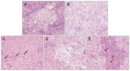 Examples of the most common pathological injury patterns. (A) Acute hepatitis due to herbal decoction with Ephedra sinica for respiratory infection. Biopsy shows confluent and bridging necrosis around the central vein and significant lobular inflammation. (B) Chronic hepatitis due to the combination of cephalosporin antibiotics and antipyretic analgesics for fever of unknown origin. Liver biopsy shows fibrous septa formation and moderate interface hepatitis. (C) Acute cholestasis due to azithromycin. Biopsy showed hepatocellular and canalicular cholestasis with bile plugs. (D, E) Cholestatic hepatitis due to herbal decoction with Polygonum multiflorum for vitiligo. Biopsy showed prominent canalicular cholestasis, confluent necrosis, and neutrophilic infiltration (H&E stain, ×200; for orientation, V indicates the central vein, P indicates the portal area, and arrows indicate cholestasis).