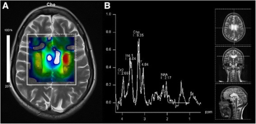 "MR spectroscopy. a Chemical-shift-imaging shows a choline ""hot spot"" (yellow and red) within the lesions. b MR spectrum in the left lesion indicates not only increased choline level, but also decreased NAA- and creatine-level, while no lactate- or lipid-peak was detectable"