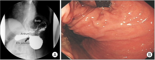 (A) An upper gastrointestinal study revealed the presence of mesenteroaxial gastric volvulus with the finding that the antrum was located above the gastroesophageal junction (red arrow). (B) Gastroscopic finding: abnormal rotation of the axis can be seen. EG = esophagogastric.