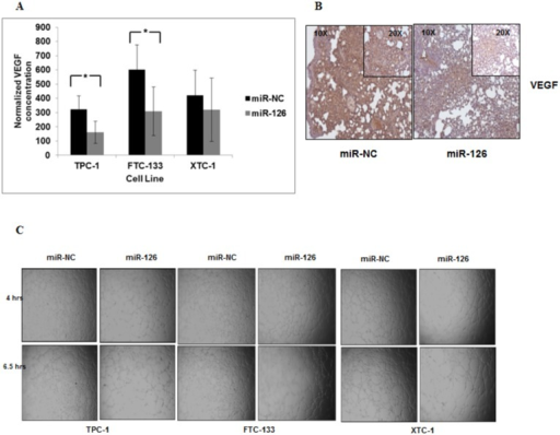 miR-126-3p reduces VEGF secretion and endothelial tube formation.(A) miR-126-3p overexpression significantly reduced secreted VEGF levels in TPC-1 and FTC-133 cell lines but not XTC-1 cells. * p < 0.5. VEGF levels were also normalized to total protein. Culture media was harvested from TPC-1, FTC-133 and XTC-1 cells transfected with miR-NC and miR-126-3p after 72 hours of transfection. (B) Expression of VEGF protein in lung tumor metastases was decreased in mice injected with FTC-133 Luc cells transfected with miR-126-3p as compared to miR-NC. (C) Endothelial cell tube formation is decreased with miR-126-3p overexpression. All experiments were repeated at least three times.