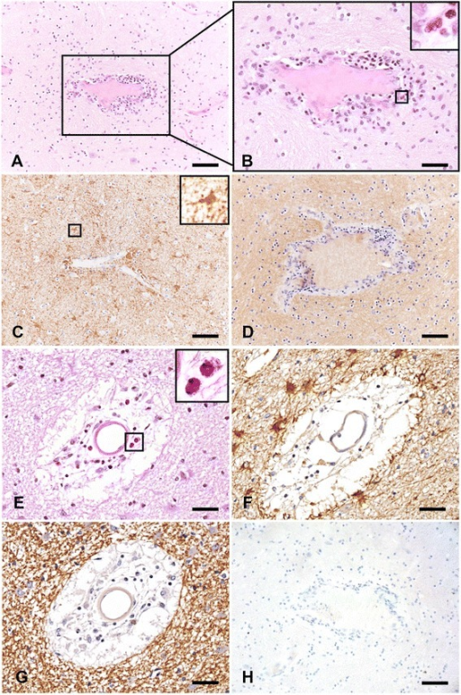 Granulocytic infiltrate occurs in the absence of demyelination, terminal complement complex formation, and overt tissue destruction in NMO white matter. a H&E staining reveals robust perivascular inflammation in the white matter of autopsy tissue collected from an NMO patient (scale bar = 100 μM). b An enlarged view of (a) and the magnified inset confirm the presence of eosinophils as a component of this perivascular infiltration (scale bar = 50 μM). c Staining for the astrocyte marker GFAP demonstrates the presence of reactive astrocytes with abnormal morphology in close association with granulocytic perivascular infiltration in a section consecutive to a. The inset highlights the increased size of a GFAP+ astrocyte (scale bar = 100 μM). d The perivascular granulocytic infiltration and astrocyte reactivity are present in a non-demyelinating NMO lesion as shown by the presence of intact proteolipid protein (PLP) staining in a section consecutive to a and c (scale bar = 100 μM). e A second example of perivascular granulocytic infiltration involving neutrophils and eosinophils (inset) in the white matter of an NMO patient is shown by H&E staining. The inset highlights the presence of eosinophils (scale bar = 50 μM). f Staining for the astrocyte marker GFAP in a section consecutive to e confirms the presence of numerous reactive astrocytes proximal to the perivascular inflammation (scale bar = 50 μM). g PLP staining reveals that in a section consecutive to (e) and (f) the myelin is intact, indicating that granulocytic infiltrate is found in the absence of demyelination (scale bar = 50 μM). h The complete absence of staining for the terminal complement protein C9neo in a section consecutive to e, f, and g shows that granulocytic recruitment to this site is not dependent on formation of the terminal complement complex (scale bar = 100 μM)