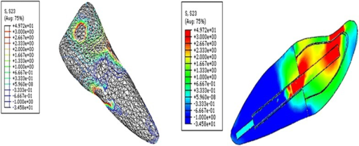 Contour plots of the shear stress distribution in ZY direction within the tooth and the post when loaded obliquely