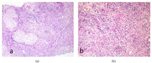 (a) Hepatic parenchyma altered structure: an expanded portal area is shown, with fibrous septa and hepatocytes enclosed in them. Inflammatory cells and ductular proliferation are seen, with positive Periodic Acid Schiff (PAS) content inside several proliferated biliary ducts. (b) Close-up view of the portal area in which four biliary ducts are seen (3 in the top half of the image and one in the lower half of the image) with PAS positive plugging inside. Images lent by Dr. Daniel Azorín, pathology department.