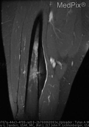 Fig. 3. MR T2 coronal image after administration of IV gadolinium demonstrates the nidus enhancing.
