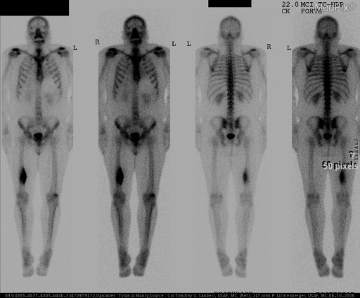 Fig. 5. Nuclear Medicine Bone Scan with Tc 99m HDP shows intense uptake of radiopharmaceutical in the lower right femur.