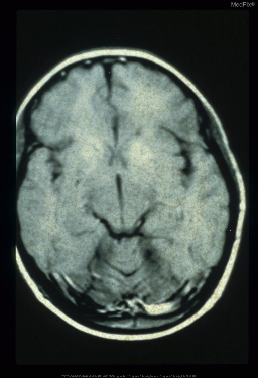 Abnormal calcification and signal in the basal ganglia.