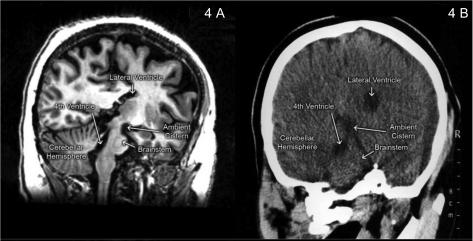 Mri Ct Correlations Showing Posterior Fossa Anatomy In Open I