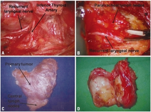 Surgical procedures for the unilateral axillo-breast approach. (A) The inferior thyroid artery was identified close to the recurrent laryngeal nerve. (B) Hemithyroidectomy with paratracheal lymph node dissection is performed with careful dissection of the recurrent laryngeal nerve. (C) The left hemithyroidectomy-specimen-en bloc with ipsilateral CND is shown. (D) A specimen of large goiter resected via hemithyroidectomy (HT). The surgical specimens showed that thyroidectomy was accomplished without violation of the thyroid capsule.