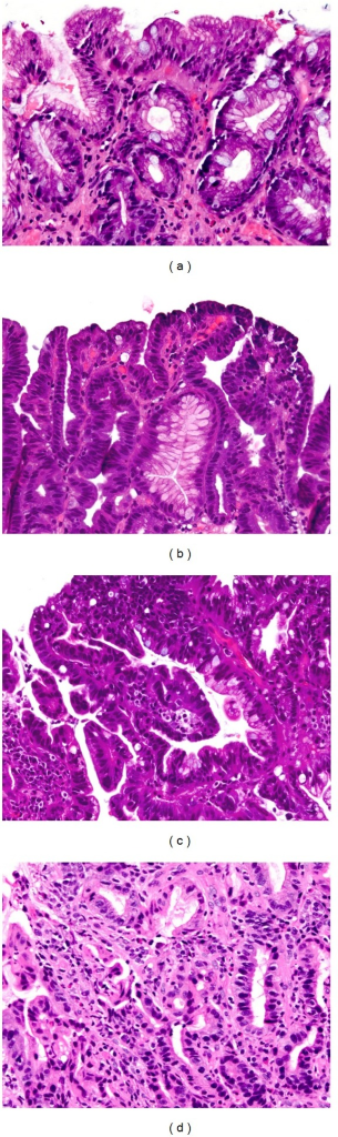 (a) Intestinal metaplasia is defined by the presence of goblet cells distended with mucin. In this photomicrograph there is no dysplasia, as evidenced by presence of surface maturation. Surface epithelial cells show uniform mucin caps and well-polarized nuclei. (b) Low-grade dysplasia of the intestinal type is characterized by hyperchromatic elongate nuclei that are seen in both the crypts and the surface epithelium (i.e., loss of surface maturation). (c) Presence of glandular crowding, nuclear stratification, and loss of nuclear polarity signifies high-grade dysplasia. (d) Glandular complexity, budding, and presence of incomplete glandular profiles are evidence of lamina propria invasion (intramucosal carcinoma).