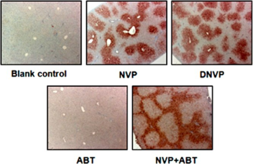 Immunohistochemistryof liver sections from female BN rats; blank control, NVP treatment(150 mg/kg/day × 7 days in food), DNVP treatment (150 mg/kg/day× 7 days in food), ABT treatment (50 mg/kg/day × 28 daysby gavage), or NVP (150 mg/kg/day) + ABT (50 mg/kg/day) × 28days by gavage. Slides were incubated with 1:100 dilution of primaryantisera and 1:2000 dilution of the secondary antisera. The slideswere counterstained with Mayer's hematoxylin; magnification20×.