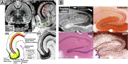 A) Hippocampal view (ii) from an axial MRI slice (i) c | Open-i