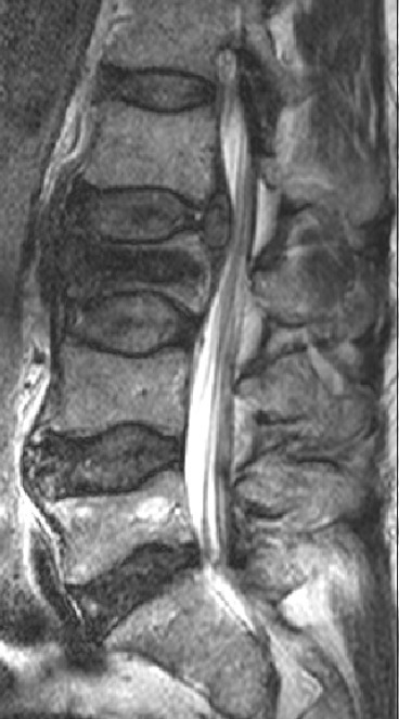 Sagittal T2WI shows a compression fracture of L3 with retropulsion of the posterior aspect of the vertebral body into the spinal canal. There is a convex area of low signal posterior to the L2 and L3 vertebral bodies that is compressing the adjacent nerve roots. The findings are consistent with a compression fracture of L3 with an associated extradural haematoma.