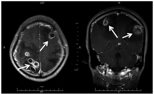 Contrast-enhanced magnetic resonance imaging scan of a 45-year-old male without any underlying diseases but with disseminated central nervous system nocardiosis, showing bilateral involvement of the brain. Multiple ring lesions with surrounding edema are shown (arrow), indicating multiple abscesses.