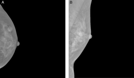 Craniocaudal (A) and mediolateral oblique (B) mammographic views demonstrating a well-circumscribed opacity in the central outer quadrant of the left breast.