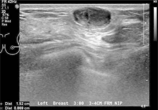 Sonographic views of an ovoid well-marginated nodule containing some cystic clefts. This lesion was initially thought to represent a phyllodes tumour.