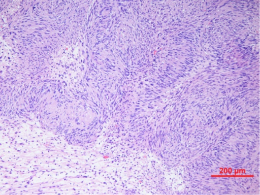 Spindle cell tumour with palisaded arrangement of nuclei, typical of schwannoma. Cellular (Antoni A) areas alternate with looser myxoid (Antoni B) areas.