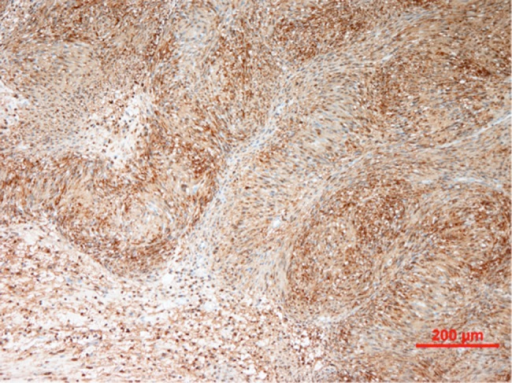 Immunohistochemistry showing tumour cells staining strongly and diffusely for S-100 protein.