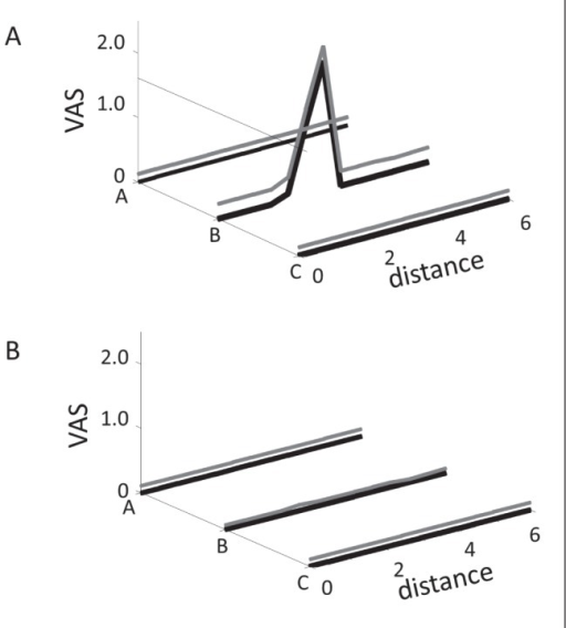 Mean visual analogue scale scores (cm) versus distance (cm) profile after saline-induced muscle hyperalgesia in the tibialis anterior muscle of the experimental muscle pain leg (A) and control leg (B). The rolling stimulation assessment on the lines A, B and C is illustrated with black lines. The grey line related to each curve indicates the SD
