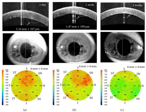 Spontaneous resolution of a detachment of Descemet's membrane following phacoemulsification. Optical coherence tomography (OCT) images at 1 day after cataract surgery (a) demonstrated superior planar type DMD with diffuse corneal edema. OCT images at postoperative 1 week (b) and 2 weeks (c) revealed spontaneous resolution of DMD without descemetopexy.