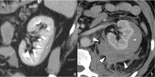 a–b Subcapsular haematoma (AAST grade I) (a) and perirenal haematoma (AAST grade II) (b). The 3-mm-thick multiplanar reconstruction (MPR) coronal image (a) acquired during the delayed phase of the study shows a well-delimited hypodense biconvex-shaped collection (star), located between the renal parenchyma and renal capsule, which determines the mild mass effect on the adjacent parenchyma (arrowheads), representing subcapsular haematoma. A similar finding may also be observed in the 3-mm-thick multiplanar reconstruction (MPR) axial image (b) acquired during the nephrographic phase in another patient in which, however, an irregularly delimited inhomogenously hypodense collection, representing perirenal haematoma (arrowheads), is appreciable between the renal parenchyma and the Gerota fascia. In both cases neither parenchymal lacerations nor active contrast material extravasations can be observed