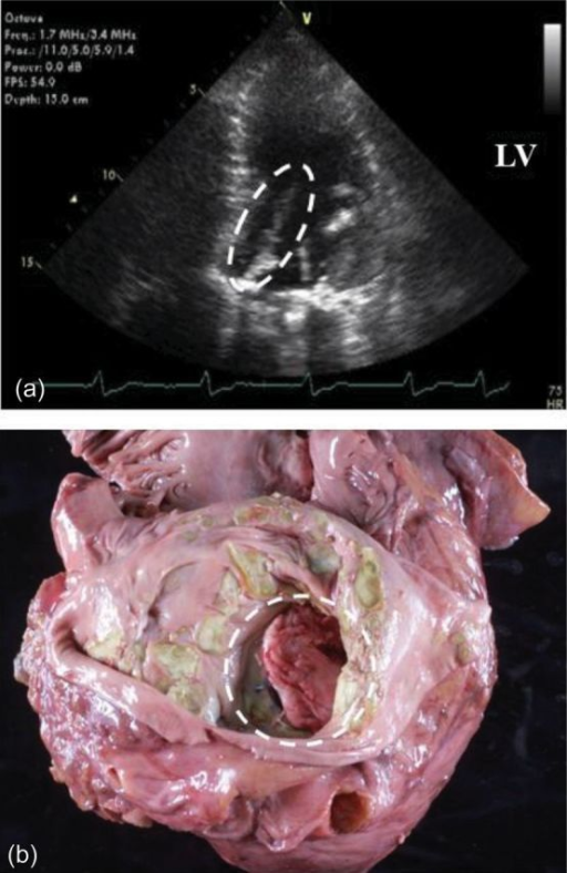 Vegetation and thrombus in the patient's heart. Dotted circles represented the lesions in echocardiogram (a) and autopsy (b).