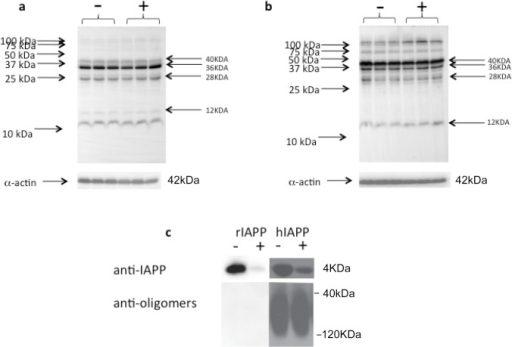 Pitrilysin does not degrade oligomeric hIAPP in vitro.a. Oligomers of hIAPP were generated from hIAPP incubated with rat cardiac myocytes and then incubated with pitrilysin (400 nM) at 37°C for 1 hr. Reactions were analyzed by Western blot analysis using mouse monoclonal anti-human amylin antibody E-5. b. Western blot of hIAPP oligomers generated from HIP rat cardiac myocytes incubated with pitrilysin. c. hIAPP were preincubated at 37°C to induce oligomer formation and then incubated with or without 40 nM pitrilysin at 37°C for 1hr. Reactions were analyzed by Western blots using rabbit anti-IAPP that recognizes monomeric IAPP or rabbit anti-oligomer antibody A11. rIAPP (20 μM) was treated at the same condition as a negative control.