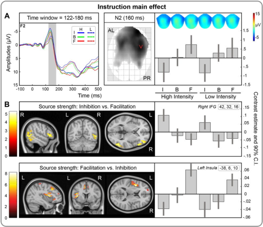 Temporal, spatial and effect size information associated with the instruction main effect at the scalp and source level. A) Top-left: grand-mean ERPs, time locked to the stimulation, separately for painful (full line) and non-painful stimuli (dotted line) and for instruction (inhibition, I; baseline, B; facilitation, F). Time scale is from − 100 to 500 ms. Negativity is displayed upward. The gray area represents the temporal extent of the significant instruction main effect at the cluster level (pFWE < .05 cluster-level; pUNC < .001 peak-level). The significant difference, corresponding to increased N2 amplitudes for inhibition vs. facilitation between 122 and 180 ms, is overlaid on a representative channel, i.e., F2. Top-right: Statistical parametric maps overlaid over the glass brain showing the spatial extent of the significant effect at 160 ms (i.e., when maximally significant). Topographical maps, as well as contrast estimates and 90% confidence intervals are depicted for the maximally significant effects at 160 ms for high and low intensity stimuli and for each instruction (inhibition, I; baseline, B; facilitation, F). AL = anterior left; PR = posterior right. B) Differences in source strength between inhibition vs. facilitation (middle panel) and facilitation vs. inhibition (bottom panel), as well as contrast estimates and 90% confidence intervals for the maximally significant effects in right inferior frontal gyrus (coordinates = [42, 32, 16]) and left insular cortex (coordinates = [− 38, 6, 10]), respectively. The source maps are thresholded at pUNC < .001 for visualization.