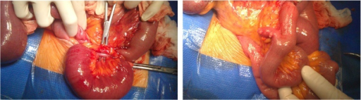 Intraoperative findings of strangulated ileum due to adhesions extending from the distal end of the appendix to the retroperitoneum and incidental discovery of asymptomatic Meckel's diverticulum.