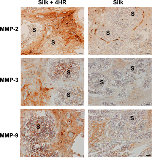 Immunohistochemical findings for tissue samples after 12 weeks.The expression levels of MMPs were higher in both groups compared to the groups at 4 and 8 weeks. MMPs were highly expressed in the fibrotic area that surrounded the silk sutures (S). Interestingly, highly expressed MMPs were observed in the vicinity of the silk sutures (S) in the silk +4HR group (Bar = 50 μm).