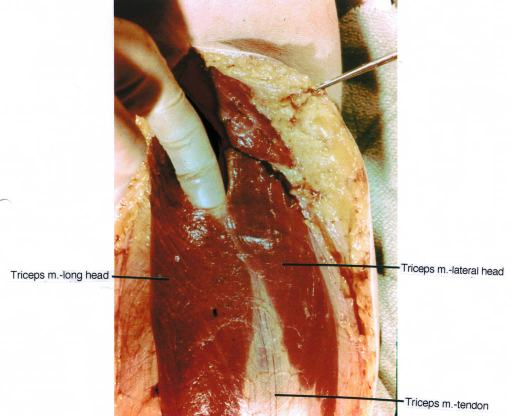 triceps muscle; triceps tendon
