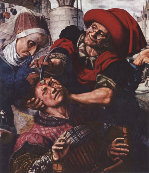 <p>A depiction of head surgery.</p>