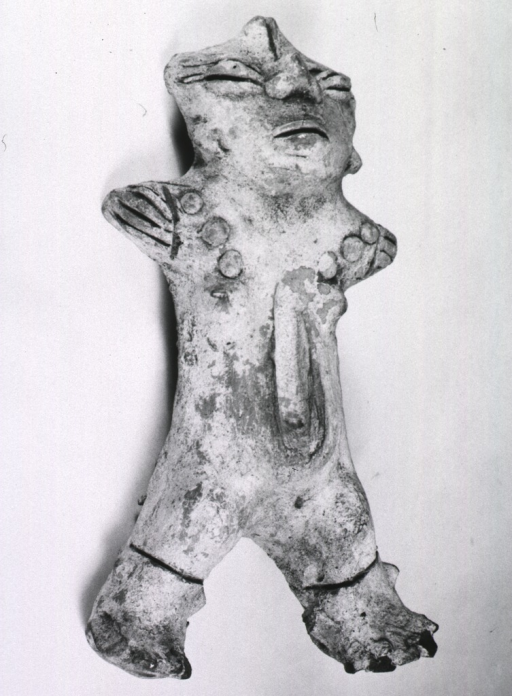 <p>Sculpture:  Female figure with prominent midline incision; arms are short, eye-lids swollen; circular markings over lower extremities.</p>