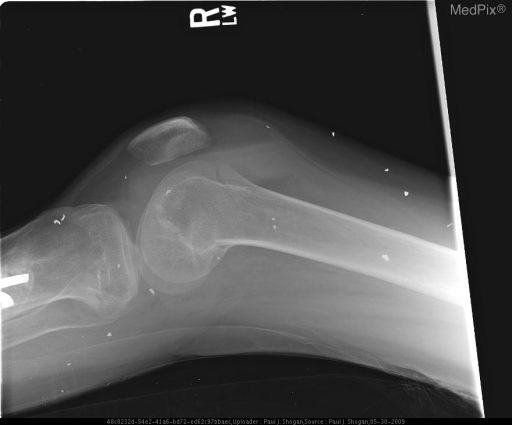 X-table lateral radiograph of the right knee shows interval placement of a partially imaged trans-tibial pin and reduction of the complex distal femoral fracture. The joint effusion again demonstrates three distinct layers: an anterior fat density layer, an intermediate fluid density layer, and a posterior hyperdense layer.