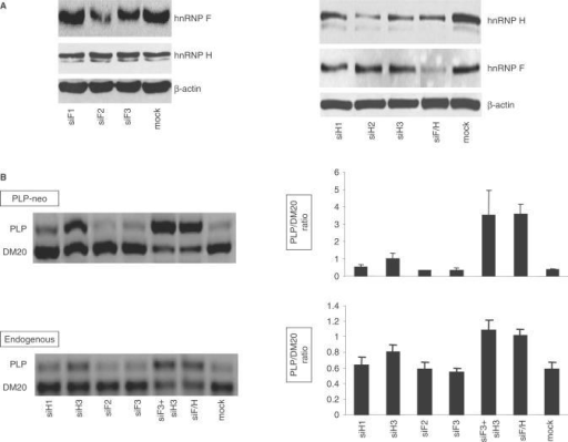 RNAi-mediated knock down of hnRNPH and F increases the PLP/DM20 ratio in Oli-neu cells. (A) Representative Western blot of cell extracts prepared from Oli-neu cells treated with siRNAs that target hnRNPH (siH1, H2, H3), hnRNPF (siF1, F2 and F3) and both H and F (siF/H). Mock are cells treated with negative control siRNA. After quantification of the bands, the values were corrected by actin, used as control for loading accuracy. The hnRNPH was reduced by 40, 70 and 50% in cells treated with siH1, siH2 and siH3 and 50% in cells treated with siH/F versus control (n = 2). The hnRNPF was reduced by 60 and 40% in cells treated with siF2 and siF3 and by 60% in cells treated with siF/H versus controls. (B) Representative RT-PCR analysis of the PLP-neo derived PLP and DM20 spliced products and the endogenous PLP and DM20 transcripts amplified from RNA isolated from Oli-neu cells treated with siH1, siH3, siF2, siF3, siF3 + H3 and siF/H (35 PCR cycles). The bar graph shows the PLP/DM20 ratios ± SD (n = 3). Mock are cells treated with control siRNA. Increase in PLP/DM20 ratio is statistically significant for siH3 (P < 0.05) and for siF3+H3 and siF/H (P < 0.01)-treated cells compared with mock-treated cells.