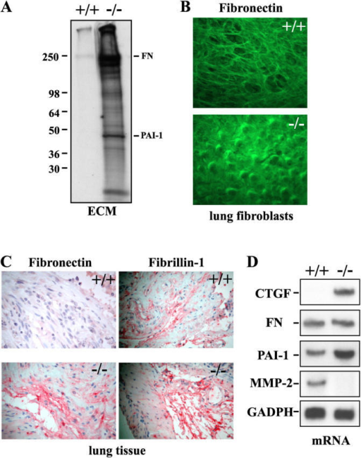 Loss of LTBP-4 results in increased production of ECM in cultured fibroblasts and in vivo mouse lung. (A) Lung fibroblasts were cultured in the presence of labeled amino acids for 2 d followed by isolation of sodium deoxycholate insoluble matrices (ECM). Polypeptides of the ECM preparations were separated by SDS-PAGE under reducing conditions and visualized by fluorography. The migration of fibronectin (FN) and plasminogen activator inhibitor-1 (PAI-1) and the molecular mass markers (kD) are indicated. (B) Lung fibroblasts were cultured for 5 d on class coverslips, after which they were fixed with methanol (−20°C) and stained for fibronectin. (C) Lung sections from the mice were stained for fibronectin and fibrillin-1. Positive staining is reddish-brown. (D) Total RNA was isolated from cultured lung fibroblasts, and mRNA expression levels of connective tissue growth factor (CTGF), matrix metalloproteinase–2 (MMP-2), FN, and PAI-1 were analyzed by Northern blotting. mRNA expression of a constant gene, glyceraldehyde-3-phosphate dehydrogenase (GADPH), was used to control loading.