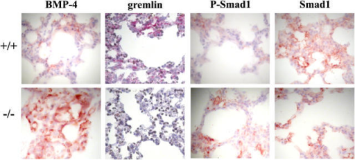 Decreased levels of gremlin and increased levels of BMP-4 and phosphorylated Smad1 in −/− lung tissue. Lung sections from wt (+/+) and LTBP-4 −/− mice were stained for BMP-4, gremlin, phosphorylated Smad1, and total Smad1. Positive staining is reddish-brown.