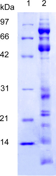 SDS-PAGE: Protein separation from 30 μg of pig purified prostasome-like vesicles on a Coomassie stained gel. Lane 1: molecular weight standards Lane 2: prostasome like-vesicles.
