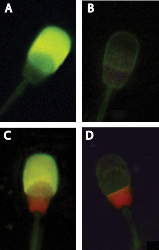 Fluorescence pattern of pig spermatozoa stained with FITC-PNA + PI for the assessment of acrosome status and sperm viability. Dead cells showing nuclear red PI fluorescence: C-D. Live cells without PI staining: A acrosome-reacted cells with uniform green FITC-PNA fluorescence of acrosome cap; B: acrosome-unreacted cells with no staining of acrosomal cap (original magnification ×1000).