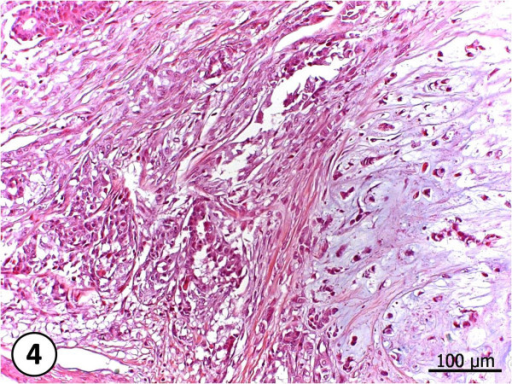 Complex carcinoma. Neoplasia composed by more than one cell type. Proliferated epithelial cells, with loss of gland architecture and presenting pleomorphism. Elongated mioeptithelial cells, presenting cartilagenous metaplasia and condroid matrix production. HE, 200X.